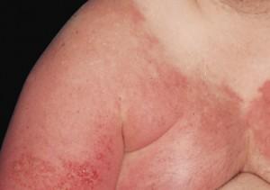 Ερυσίπελας – Μια σημαντική επιπλοκή του λεμφοιδήματος
