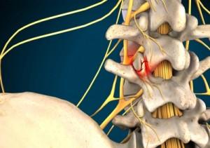 Αρθρίτιδα ζυγοαποφυσιακών αρθρώσεων (facet joints)