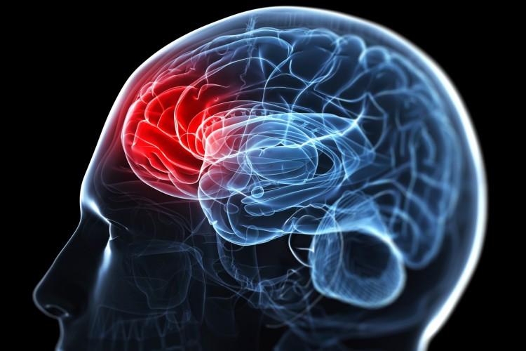 Κινητική αποκατάσταση σε Αγγειακό Εγκεφαλικό Επεισόδιο: Ο ρόλος της Φυσικοθεραπείας
