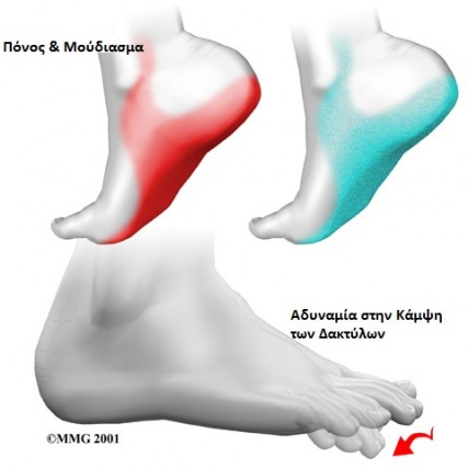 foot_tarsal_tunnel_causes02-Copy