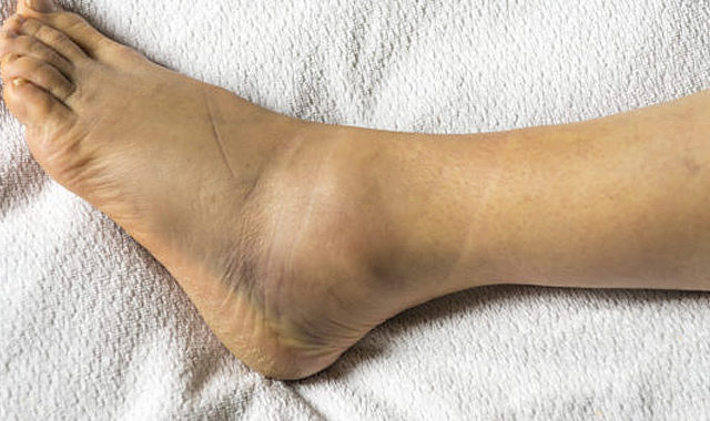 Πως αντιμετωπίζεται το μετατραυματικό οίδημα (πρήξιμο) μετά από διάστρεμμα?