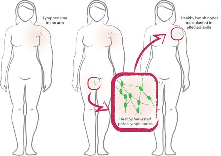 μεταμόσχευση λεμφοιδήματος