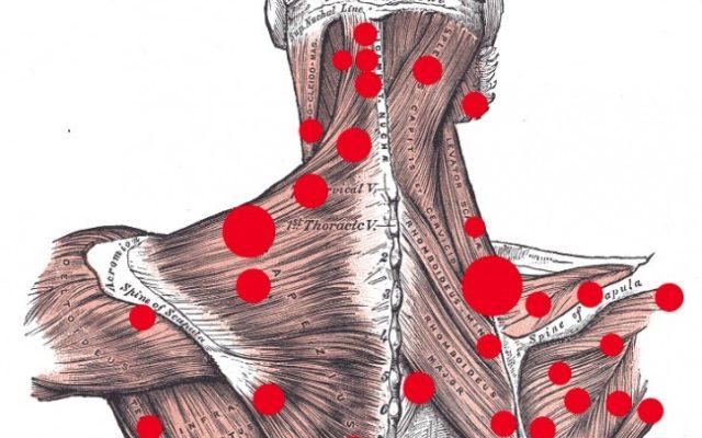 Trigger points και μυοσκελετικός πόνος