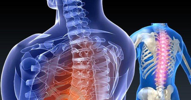 Προβλήματα στη Σπονδυλική στήλη