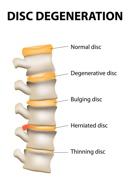disc-degeneration-in-lower-back.jpg