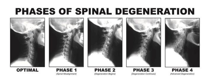 Spinal-degeneration-708x279.jpg