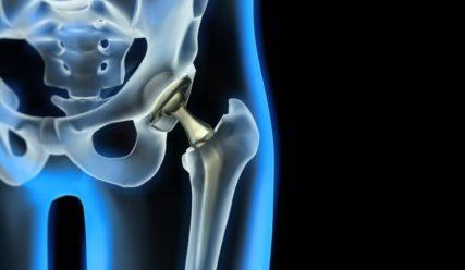 Αρθροπλαστική ισχίου – 5 συνηθισμένα λάθη μετά το χειρουργείο