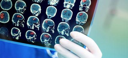 Εγκεφαλικό επεισόδιο – Πόσο επηρεάζει τη σεξουαλική ζωή;