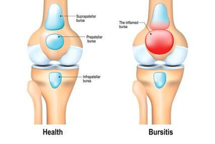 Ορογονοθυλακίτιδα -Μήπως ο αρθρικός σας πόνος οφείλεται σε φλεγμονή του ορογόνου θύλακα;